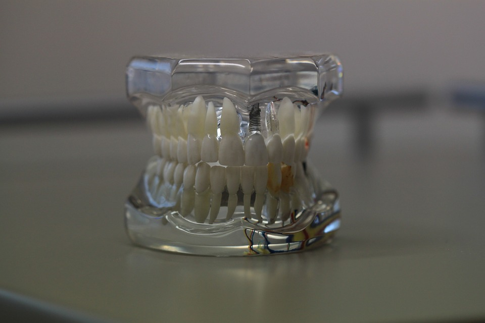 dentistry-668214_960_720.jpg
